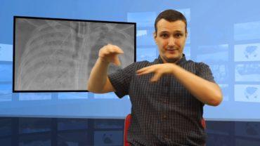 Płuca dziurawe przez koronawirus