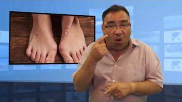 Co to jest stopa cukrzycowa?